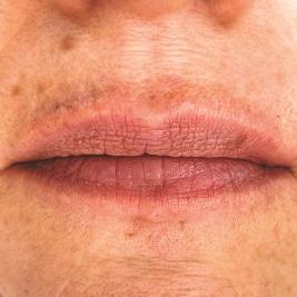 gemeinschaftspraxis dreo Mesotherapie Pforzheim Faltenbehandlung lippen aufspritzen ästhetische medizin hyaluron behandlung Pforzheim lippen contouring