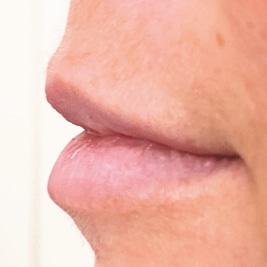 gemeinschaftspraxis dreo Mesotherapie Pforzheim Faltenbehandlung lippen aufspritzen ästhetische medizin hyaluron behandlung Pforzheim lips
